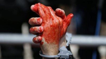 Причиной двойного убийства детей в Одессе могли стать месть или помутнение рассудка