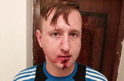 Трое неизвестных  избили журналиста Константина Гречаного