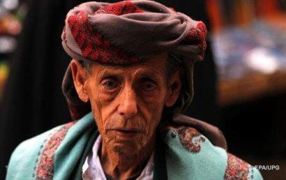 Ученые обнаружили главную причину старения